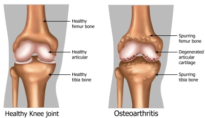 Arthritis Traditonal Explanation